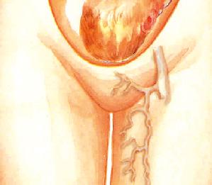 El 80% de las varices del embarazo desaparecen tras el parto al eliminarse los factores que las causaban